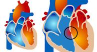 Types of Cardiac Catheterization